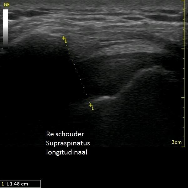 Musculoskeletale Echografie-1